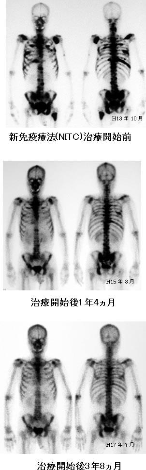 前立腺がん 多発骨転移 比較画像 骨シンチ