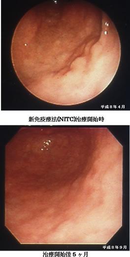 スキルス胃癌 手術拒否症例 【症...